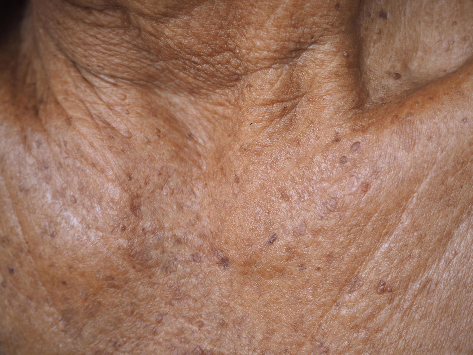 PCDS actinic keratosis guideline | Independent professional body guideline  | Guidelines